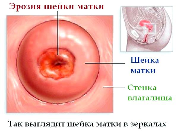 діагностика ерозії шийки матки
