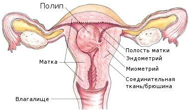 причини ендометриту