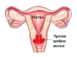 Ерозія шийки матки після пологів